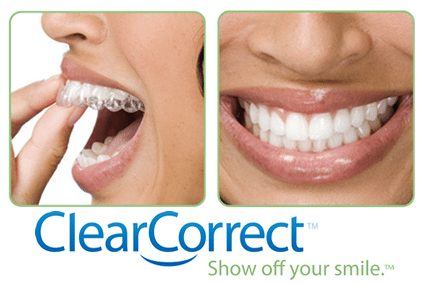 A woman putting in Clear Correct invisible braces