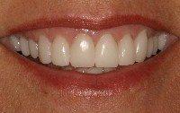 Porcelain crown smile