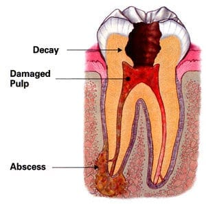 Diagram of a decayed tooth with damaged pulp in the center and an abscess at the tip of the left root; for information on Ahwatukee, Phoenix affordable dentistry.